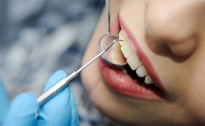 Ортодонтски Преглед, План за Лечение и Полиране на Зъбите в Дентален Кабинет д-р Снежина Цекова!