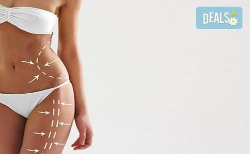 За изваян силует! 5 процедури целутрон, всяка по 60 минути, в Студио Relax Beauty & Spa!