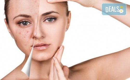 Дълбоко Почистване на Лице в 11 Стъпки с Нанасяне на Седефен Пилинг и Матиращ Флуид от Sunflower Beauty Studio