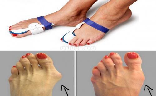 Комплект Коригиращи Протектори за Палеца на Крака Goodnight Bunion